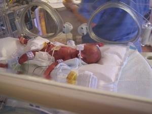 neonatal and pediatric air transport neonatal air ambulance